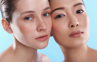Our Tips For Calming Rosacea
