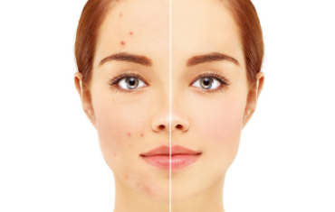 Before and after acne treatment in London